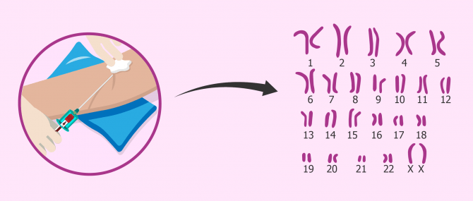 Imagen: Cariotip per a diagnosticar esterilitat d'origen cromosòmic