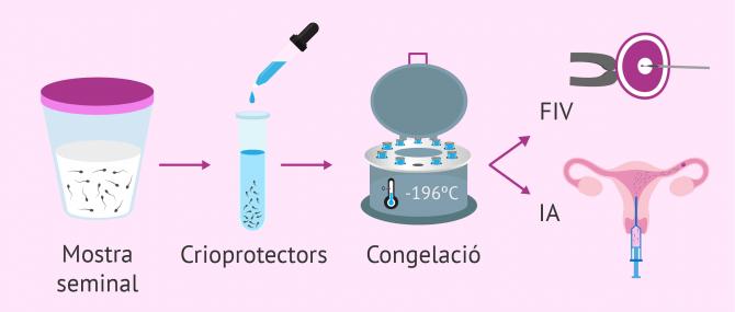 Imagen: Proceso de congelación de esperma